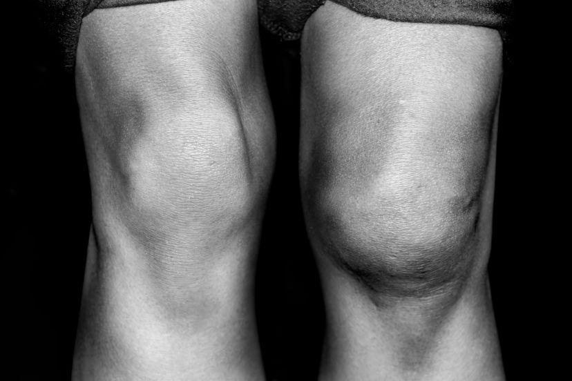 patellar tendon rupture