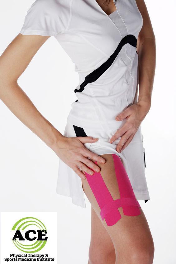 kinesio tape knee medial pain