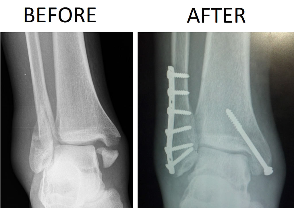 1024px-Trimalleolar_Ankle_Fracture_Xray_shown_before_surgery_and_after_surgery