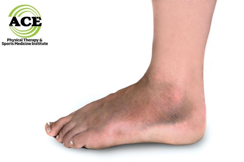 lizfranc injury