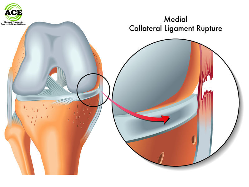 medial collateral ligament (mcl) knee injuries, Human body