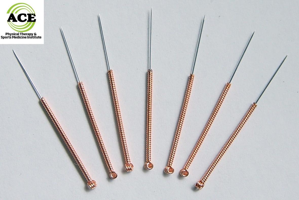 dry-needlingneedles