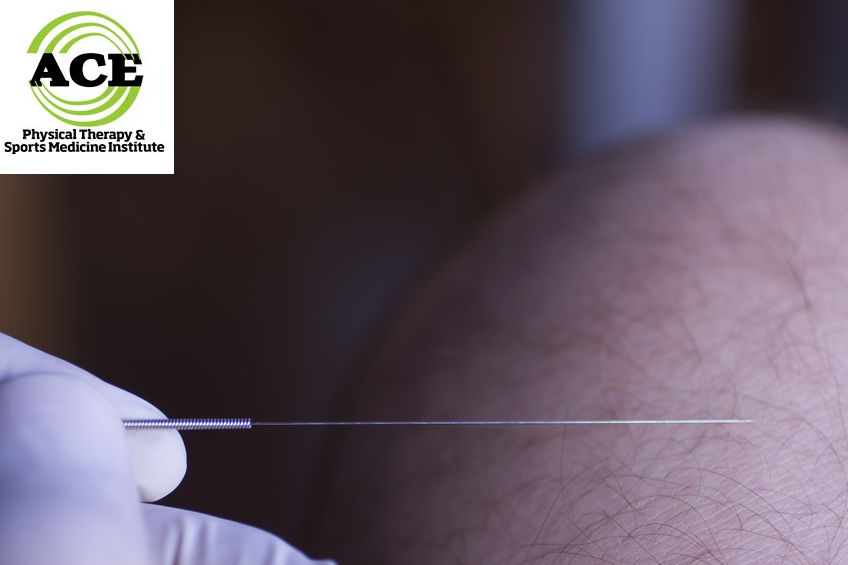 DRY NEEDLING IN PHYSICAL THERAPY